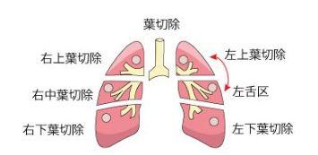 中村獅童 肺腺癌ステージ1Aで現在は良くても、油断大敵!再発の可能性が高いだけに、しっかりと予防をしてほしい!