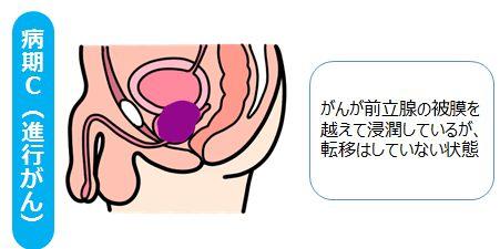 前立腺がんの検診でひっかか