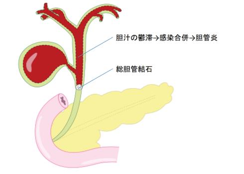 三宅正治の急性胆管炎!原因や症状や余命に注目してみた!