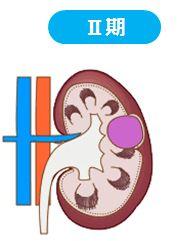 田崎佑一 腎臓がんステージと余命は?嫁のためにも健康に!