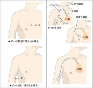 小林麻央 ブログ KOKORO「ポート」の内容分析!新しい医療に期待したい!!