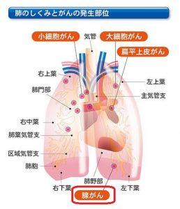 野際陽子肺腺癌ステージは4だったのか?死去の死因となった肺腺がんに迫る!