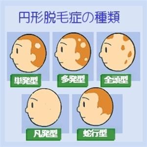 森本稀哲 病気の汎発性脱毛症が完治しても坊主を貫く理由には感動的なエピソードが隠されていた!