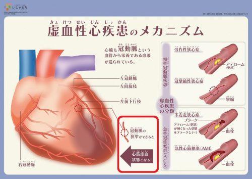 友鵬勝尊 死因の虚血性心不全の症状・原因など、虚血性心疾患の怖さについて調べてみた!