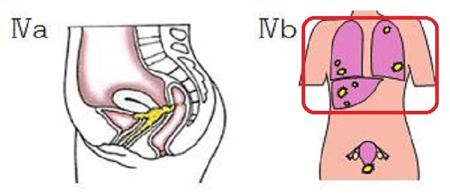 古村比呂 子宮頸がんステージ4bに!再々発の早期発見で生存率を乗り越えてほしい!