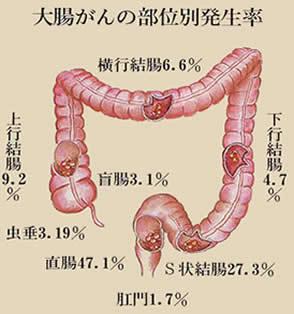 大家仁志-大腸がんステージは4?嫁や子供など、今になって検索されている・・・