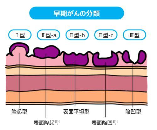 中尾翔太 胃がんステージや余命に、ファンの心配が集まる!