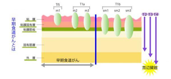 大橋純子 食道がんステージⅠの余命や治療法などをまとめてみた!
