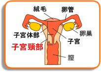 川村りか 子宮頸がん には子宮頸腺がん以外に何があるのか?