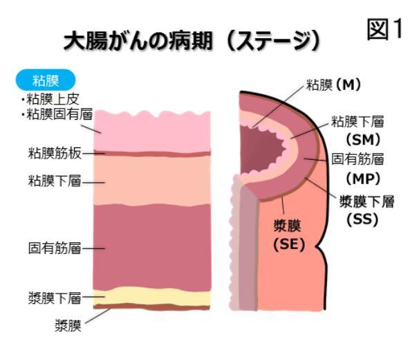 原口文仁 大腸がんステージは3?余命や生存率について分かる範囲で考えてみた!